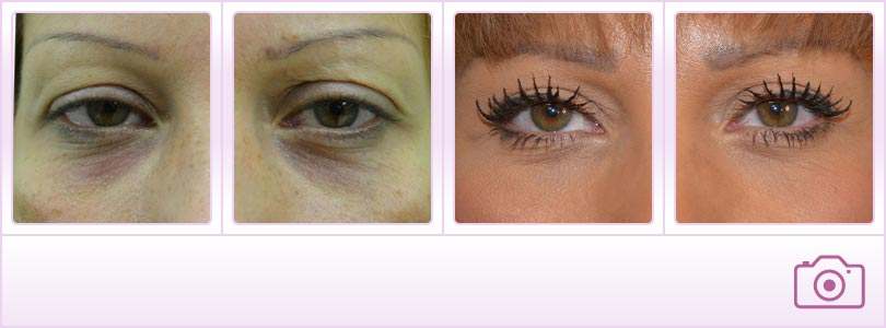 Blepharoplasty - Facelift surgery