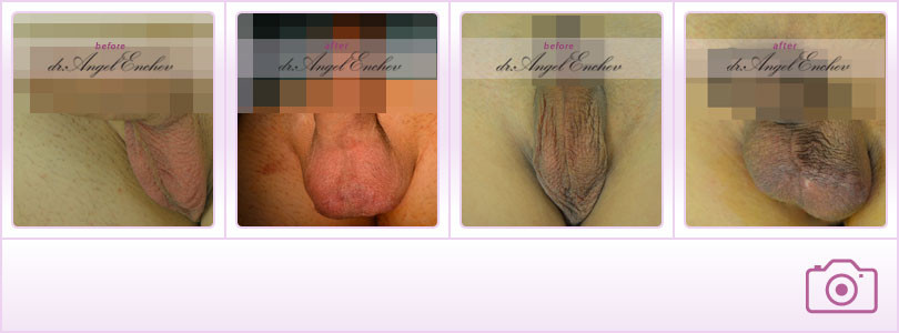 Placement implant testiculaire