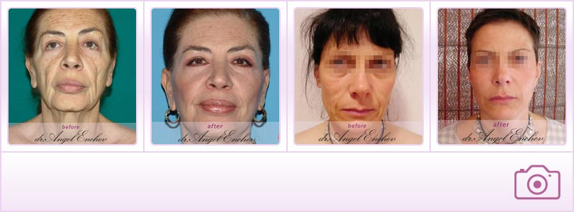 Lifting - Visage plastique