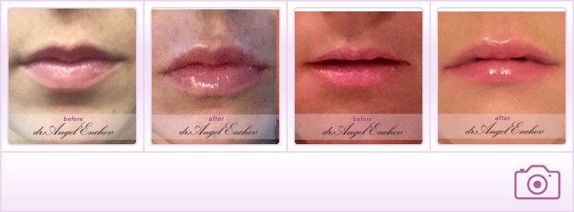 Lip augmentation/Lip Enhancement