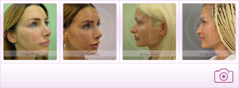 Rhinoplasty - Plastic Surgery to correct the nose