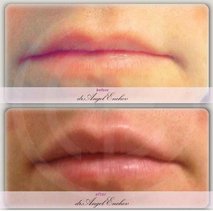 Неинжективна мезотерапия за плътни устни с хиалуронова киселина
