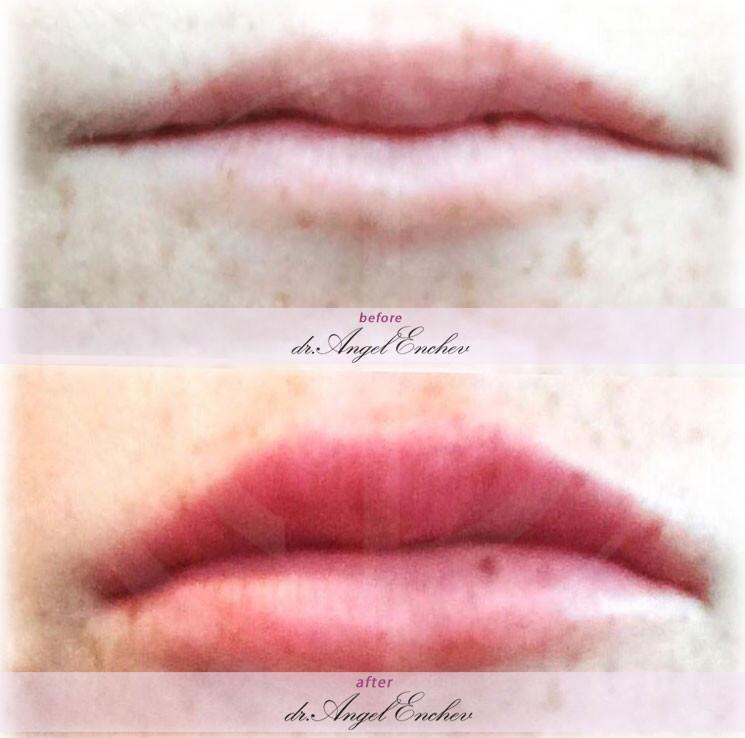 Уголемяване на устни лореал
