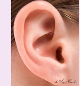 Otoplasty - Surgical correction of ears