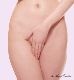 Vaginoplasty and Labiaplasty - sculpture of labia
