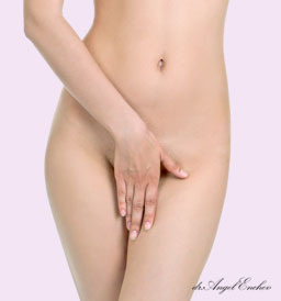 Vaginoplasty - Vaginal Tightening