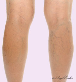 Bloodless treatment of varicose veins