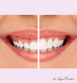 Gummy Smile Reduction