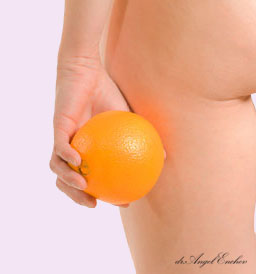 Liposuction - Remove accumulated fat