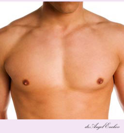 Gynecomastia/Male Breast Reduction