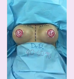 Breast Enhancement by Dr.E! 906090