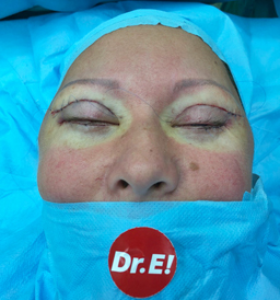 Eyelid Surgery (Blepharoplasty) by Dr. Angel Enchev M.D. Ph.D.